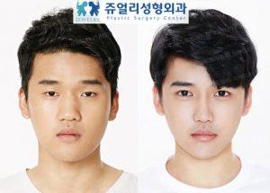 operasi plastik di korea